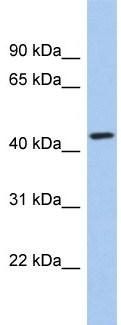 Western blot - KCTD10 antibody (ab94867)