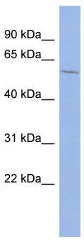 Western blot - MAP3K8 antibody (ab94899)