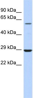 Western blot - LPCAT1 antibody (ab94903)