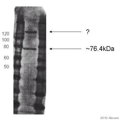Western blot - Bestrophin 3 antibody (ab94904)