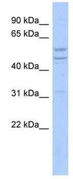 Western blot - TIMM44 antibody (ab94909)