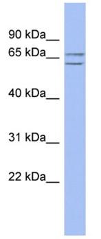 Western blot - SLU7 antibody (ab94910)