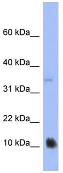 Western blot - MGC70863 antibody (ab94911)