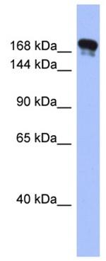 Western blot - Synaptojanin antibody (ab94912)