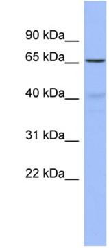 Western blot - Frizzled 2 antibody (ab94913)