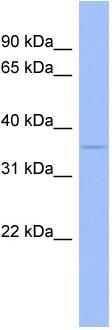 Western blot - Anti-Wnt5b antibody (ab94914)