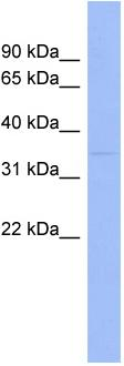 Western blot - Wnt7b antibody (ab94915)