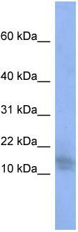 Western blot - WDR9 antibody (ab94916)