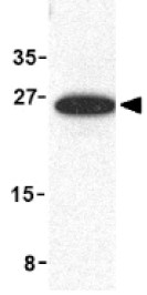 Western blot - MD2 antibody (ab94934)