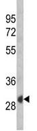 Western blot - SFRP1 antibody (ab94942)