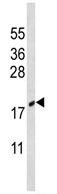 Western blot - CIRBP antibody (ab94999)