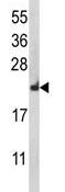 Western blot - RPL18A antibody (ab95001)