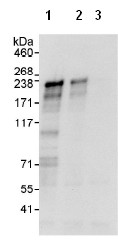 Immunoprecipitation - FANCM antibody (ab95014)