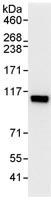 Immunoprecipitation - SCYL1 antibody (ab95073)