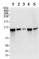 Western blot - SCYL1 antibody (ab95074)