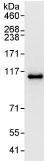 Immunoprecipitation - ERK5 antibody (ab95078)