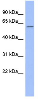 Western blot - CACNB1 antibody (ab95109)