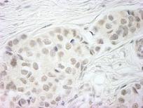 Immunohistochemistry (Formalin/PFA-fixed paraffin-embedded sections) - BubR1 antibody (ab95146)