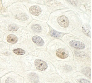 Immunohistochemistry (Formalin/PFA-fixed paraffin-embedded sections) - DHX33 antibody (ab95148)