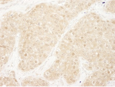 Immunohistochemistry (Formalin/PFA-fixed paraffin-embedded sections) - ERK1 antibody (ab95149)