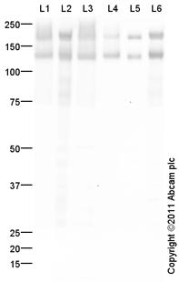 Western blot - Anti-NCAM antibody (ab95153)