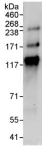 Immunoprecipitation - MTMR15 antibody (ab95171)