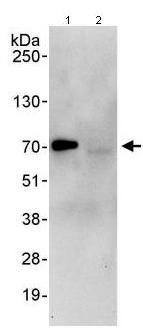 Immunoprecipitation - UCKL1 antibody (ab95177)