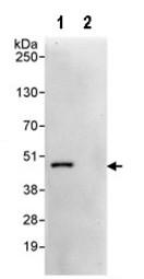 Immunoprecipitation - CAMK1D antibody (ab95178)