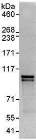 Immunoprecipitation - NEK4 antibody (ab95189)