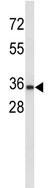 Western blot - Uroplakin Ia antibody - C-terminal (ab95207)
