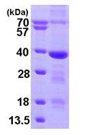SDS-PAGE - MED4 protein (His tag) (ab95264)
