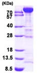 SDS-PAGE - Fructose 6 Phosphate Kinase protein (His tag) (ab95304)