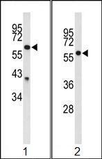 Western blot - NOP58 antibody [RB17467] (ab95315)