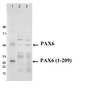 Western blot - PAX6 antibody [PR-2D11] (ab95330)