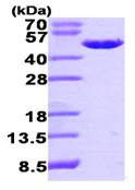 SDS-PAGE - EBP1 protein (His tag) (ab95350)