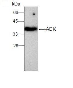 Western blot - ADK antibody [7] (ab95388)