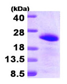 SDS-PAGE - BAALC protein (His tag) (ab95394)