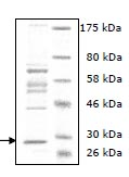 SDS-PAGE - LOXL4 protein (Human) (ab95447)