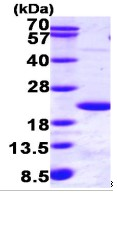 SDS-PAGE - Ube2B protein (Tagged-His Tag) (ab95484)