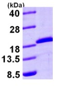SDS-PAGE - Rad6 protein (His tag) (ab95493)