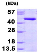 SDS-PAGE - ADK protein (His tag) (ab95495)