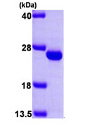SDS-PAGE - Frataxin protein (His tag) (ab95502)