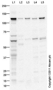 Western blot - DPYD antibody (ab95834)