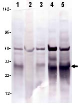 Western blot - Lin28 antibody [PR-4C9] (ab95852)