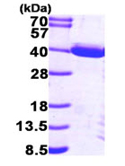SDS-PAGE - PIG3 protein (His tag) (ab95857)