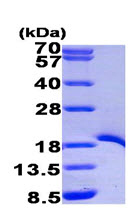 SDS-PAGE - TRAF1 protein (His tag) (ab95858)