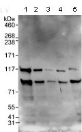 Western blot - TDRD3 antibody (ab95879)