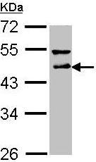 Western blot - DLST antibody (ab95946)