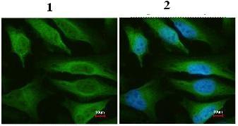 Immunocytochemistry/ Immunofluorescence - FH antibody (ab95947)