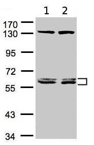 Western blot - DNAJC7 antibody (ab95951)